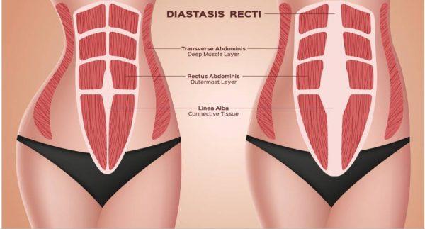 diastasis madrid